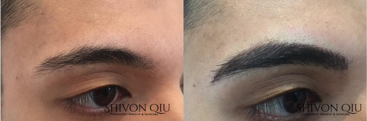 Before & After Eyebrows - Male